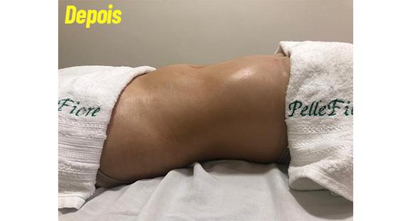 Método Silhueta com Massagem Drenomodeladora com Pantalas + procedimentos!